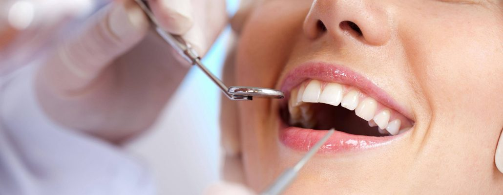 teeth cleaning concord nc